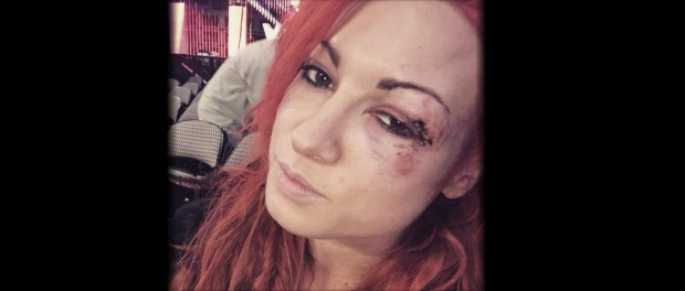 Becky Lynch black eye