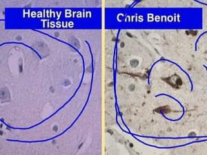Chris Benoit's brain